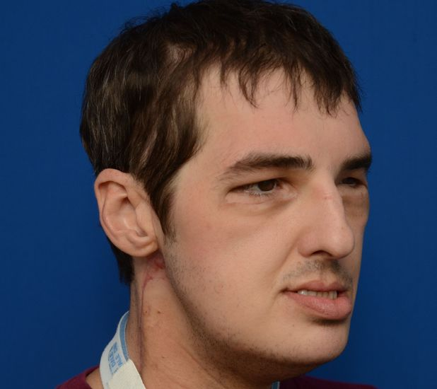 Richard Lee Norris, straight after most extensive face transplant after shooting himself in the face