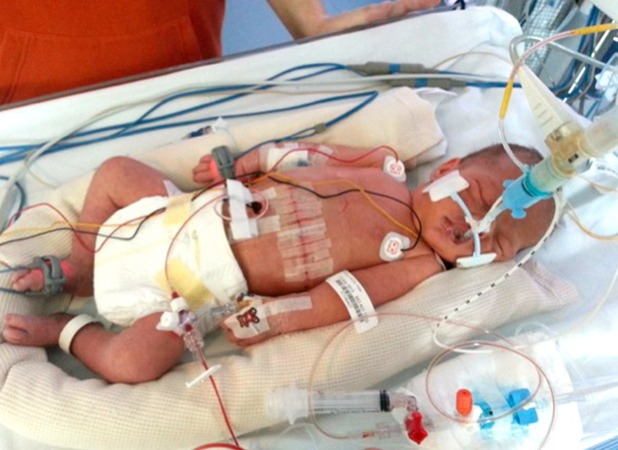 Sarah Rollings, my baby needed an operation while she was still in my womb