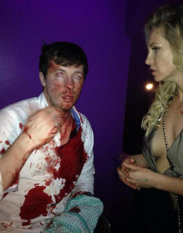 Josie Gibson shares picture after her brother Harry is attacked - 25 January 2014