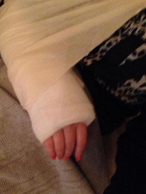 Kimberley Walsh breaks her wrist, 23 March 2014