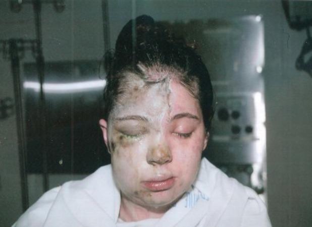 Christine McFadden, My stepfather threw acid in my face
