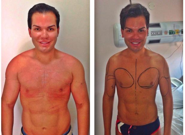 Rodrigo Alves, £100,000 surgery has turned me into Ken