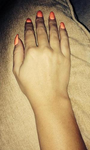 Pregnant Kimberley Walsh tells fans she is now able to remove her cast (4 May).