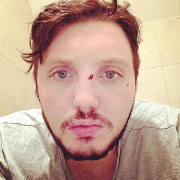 James Arthur involved in Polish bar brawl, 23 June 2014