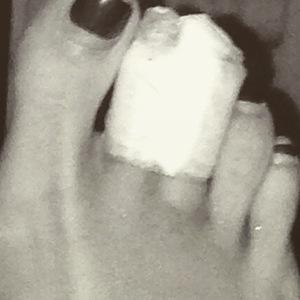 Kimberly Wyatt breaks her toe 26 January