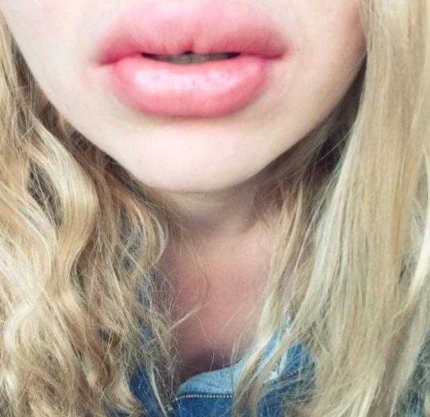 kylie jenner lips 20th april