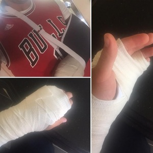 "Kirk Norcross posts injury to twitter ""One hand equals three fractures ouch!!! "" 28th April 2015"