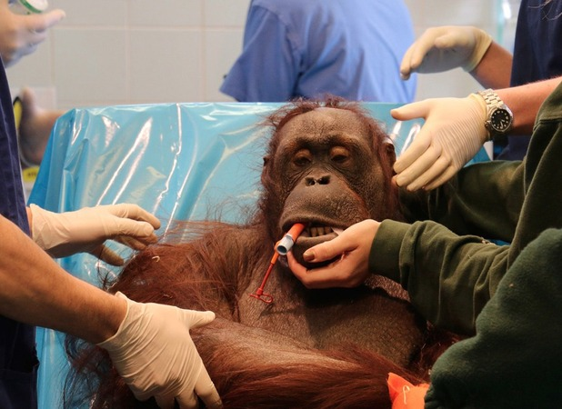 Vicky, the first orangutan to have double surgery in the UK