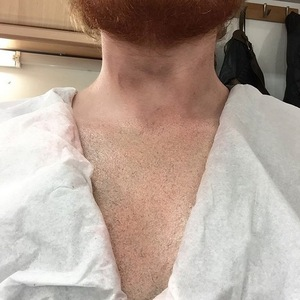 Ed Sheeran reveals lion tattoo is fake? 26 August