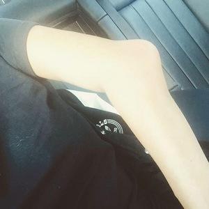 Caroline Flack breaks arm 13 October