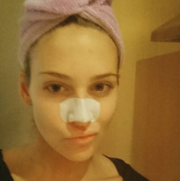 Stephanie Pratt uses nose strips for clear skin, 27 January 2016