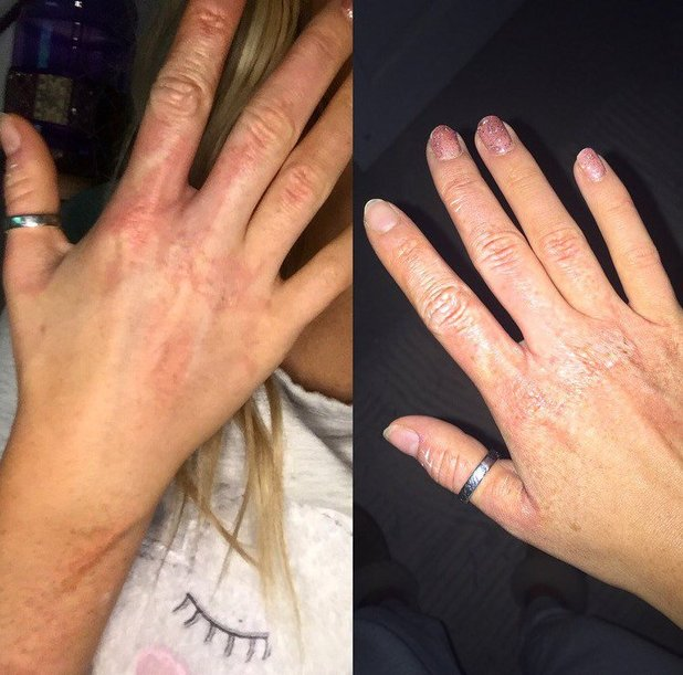Perrie Edwards receives serious burn to arm and hand after boiler blows up. 25 February 2016.