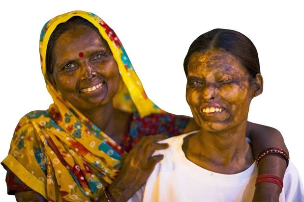 Acid attack survivors Geeta and Neetu