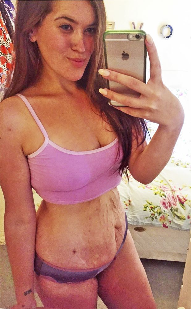 Isabella Hancock shows off the saggy skin she was left with after losing weight