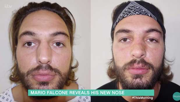 Mario Falcone confirms nose job on This Morning, ITV 7 October